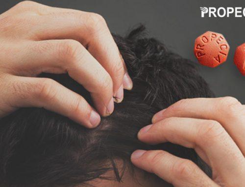 Propecia (Finasteride) è il miglior farmaco per trattare la calvizie